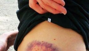 Schmerzhafte blaue Flecken (Foto)