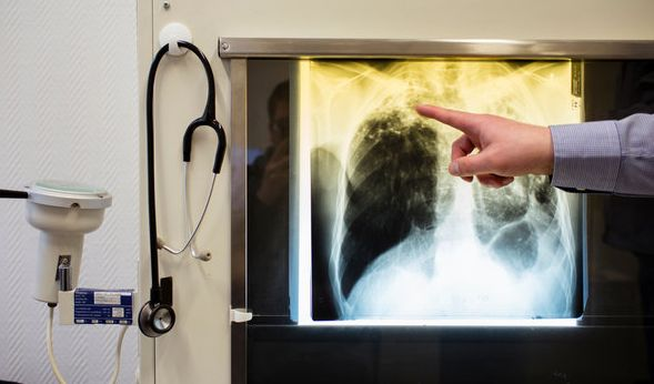 Schwer zu erkennen: Die Erkrankung an Tuberkulose. (Foto)