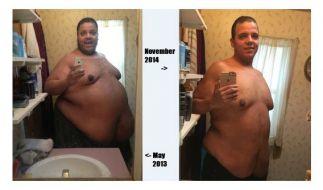 Vom 300-Kilo-Mann zum 150-Kilo-Leichtgewicht in 1,5 Jahren: Die Geschichte des Amerikaners Jesse Shand. (Foto)