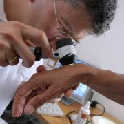 Weißer Hautkrebs ist für den Laien nur schwer zu erkennen. (Foto)