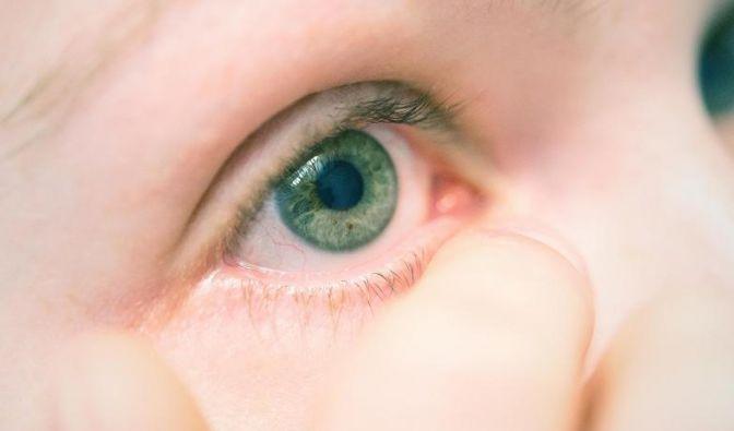Wenn die Lidränder gereizt sind, sollten Betroffene ihre Augen nicht schminken.