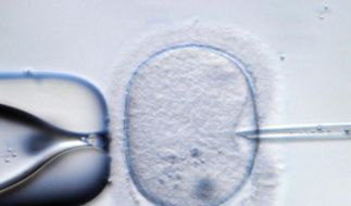 Wollen Frauen ihre Eizellen für eine Schwangerschaft zu einem späteren Zeitpunkt einfrieren lassen, sollten sie das in möglichst jungen Jahren tun. Apple und Facebook unterstützen das mit einer ungewöhnlichen finanziellen Maßnahme. (Foto)