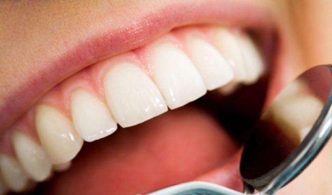 Zahnuntersuchung (Foto)
