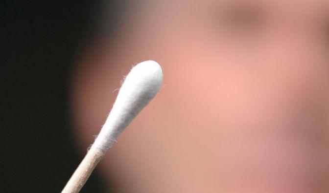 Zu viel Ohrenschmalz vom HNO-Arzt entfernen lassen (Foto)