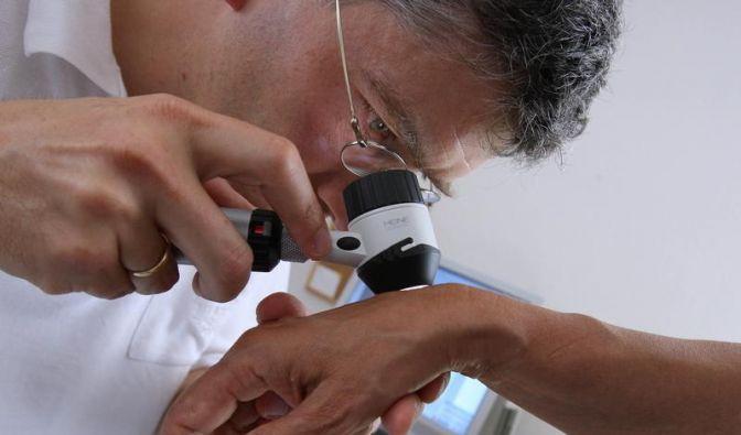 Zur Krebsvorsorge Haut regelmäßig kontrollieren (Foto)
