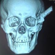 Mann fährt mit 30-Zentimeter-Klinge im Kopf 100 Kilometer zur Klinik (Foto)