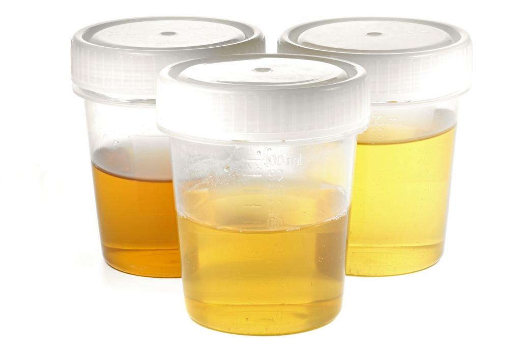 tr b gelb oder rot das verr t die urinfarbe ber ihre. Black Bedroom Furniture Sets. Home Design Ideas