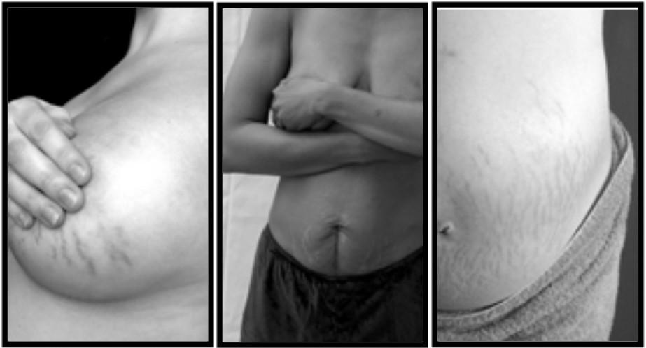 dehnungsstreifen brust nackt