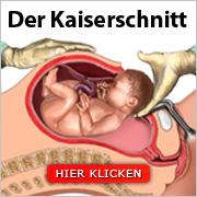 Der Kaiserschnitt