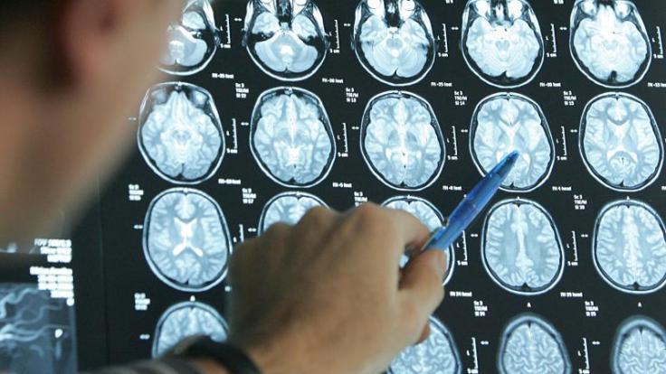Ob ein Schlaganfall vorliegt, lässt sich mit bildgebenden Verfahren klären. Gedächtnislücken, Sprach- oder Sehstörungen können die Folge sein. (Foto)