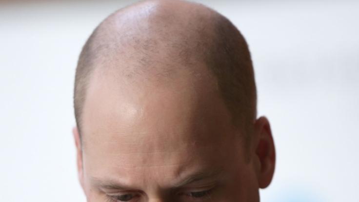 Prinz William verblüffte beim Besuch eines Kinderkrankenhauses mit einer neuen Haarfrisur.