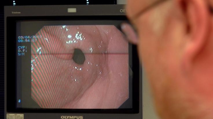 Bei rund einer halben Million Deutschen führen Darmausstülpungen zu einer schmerzhaften Krankheit, die lebensbedrohlich sein kann. (Foto)