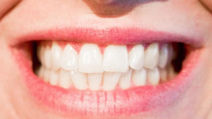 Für ein strahlend weißes Lächeln muss man nicht zwangsläufig zum Bleaching greifen - auch altbewährte Anwendungen verhelfen zum Hollywood-Strahlen.