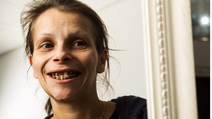 Seit zehn Jahren war Antje nicht mehr beim Zahnarzt. Bei Extrem schön! auf RTL2 soll sich ihr Äußeres nun endlich ändern.