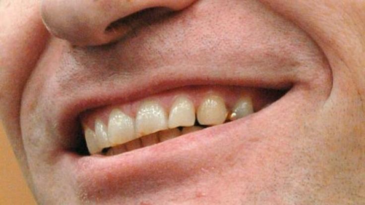 Diese Zähne zerkauten Menschenfleisch: Sie sitzen im Mund vom Armin Meiwes, auch bekannt als Kannibale von Rotenburg.  (Foto)