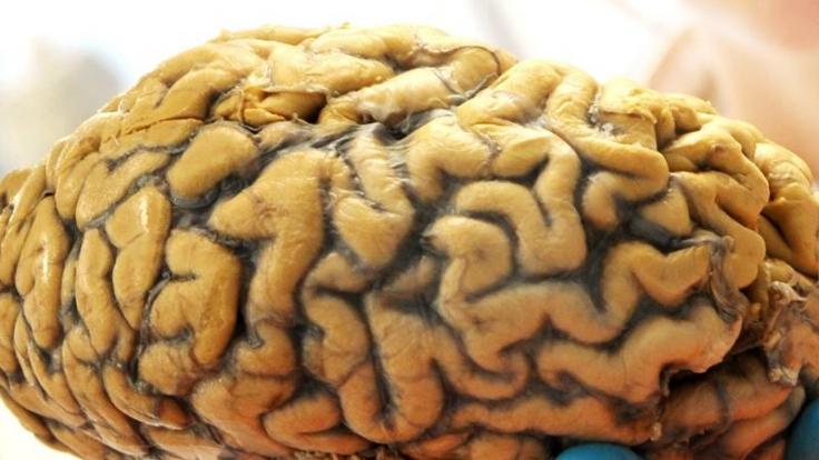 Karanams Zwilling hatte sich in ihrem Gehirn eingenistet. (Foto)