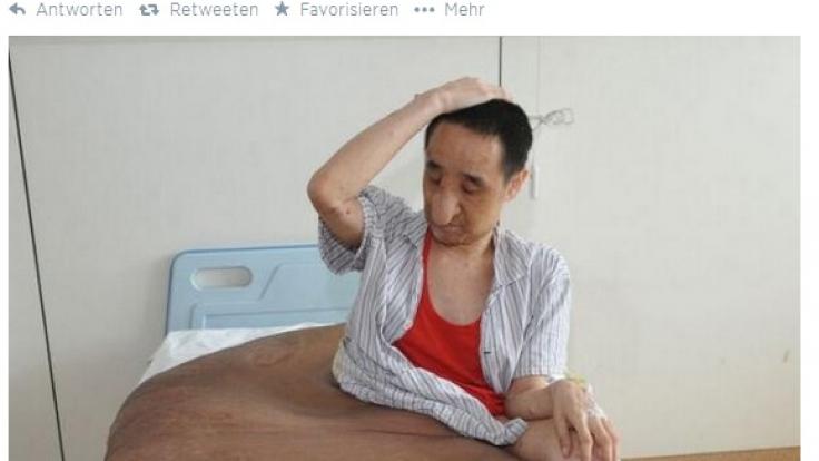 Diesem Mann wurde ein 110 Kilogramm schwerer Tumor entfernt.