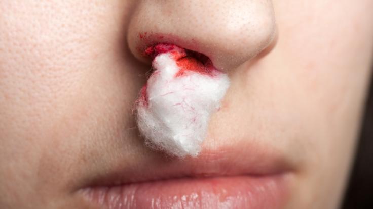 Nasenbluten ist nervig - umso wichtiger, dass es schnell gestoppt wird.