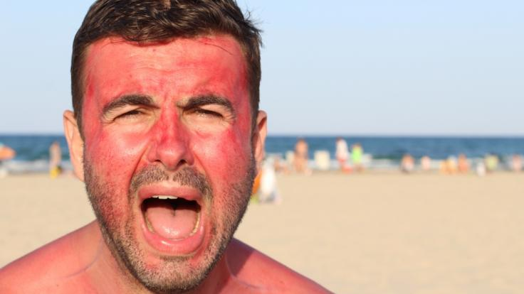 """Mit der """"Sunburn-Tattoo-Challenge"""" versuchen sich die User verschiedene Motive auf die Haut zu brennen. (Symbolbild) (Foto)"""