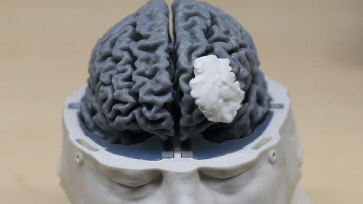 Im menschlichen Gehirn ist jede Menge Platz für sämtliche Daten. Doch leider lagern viele ihr Gedächtnis auf Smartphones aus.