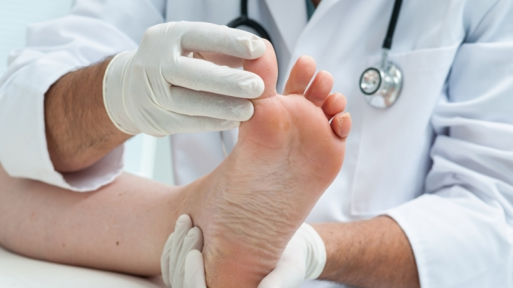 In England hat sich eine 19-Jährige auf Grund eines eingewachsenen Zehennagels das Bein amputieren lassen. (Symbolbild)