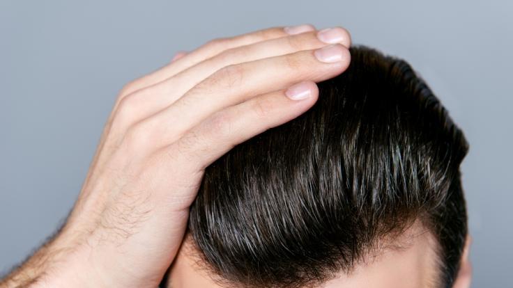Anti-Schuppen-Shampoos enthalten oft kritische Inhaltsstoffe.