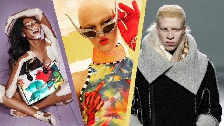 Trotz ihrer Makel sind diese Models gut im Geschäft.
