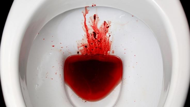 Nadine Lee trinkt ihr eigenes Menstruationsblut, weil sie sich damit angeblich fitter fühlt. (Foto)