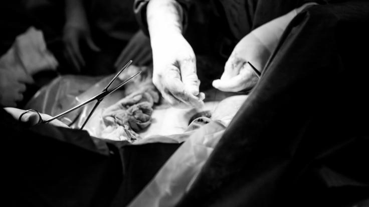 Nach der Entbindung ihrer Tochter per Kaiserschnitt bekam eine junge Mutter die niederschmetternde Diagnose nekrotisierende Fasziitis (Symbolbild). (Foto)
