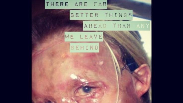 Auch ein Bild nach einigen Operationen stellte Katie online. (Foto)