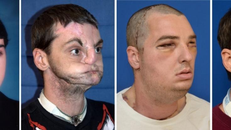 Richard Lee Noris verlor bei einem Unfall sein Gesicht. Nach einer aufwendigen Operation trägt er nun das Gesicht eines Toten. (Foto)