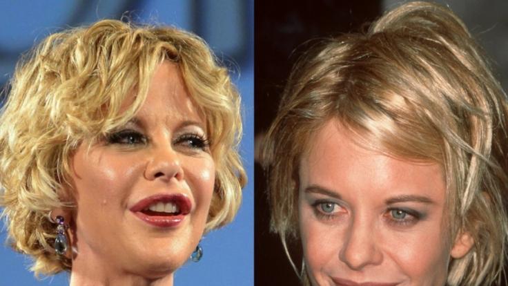Meg Ryan in den Jahren 2013 (links) und 1997: Der Unterschied ist deutlich. Lippen sind aufgespritzt, Wangen unterpolstert. (Foto)