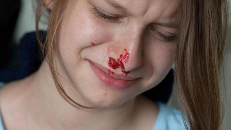 Ein heftiges Niesen reicht manchmal aus: Schon tropft das Blut. Meist sieht Nasenbluten aber schlimmer aus, als es ist.