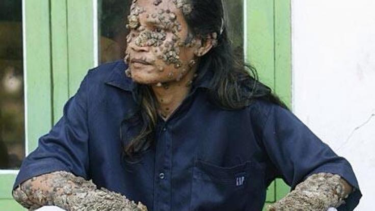 Auch die Baumrinden-Haut ist nicht heilbar. (Foto)