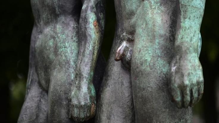 Deutschland ist Weltmeister bei Penisvergrößerungen. Knapp 3000 operative Eingriffe fanden 2013 in Deutschland statt.