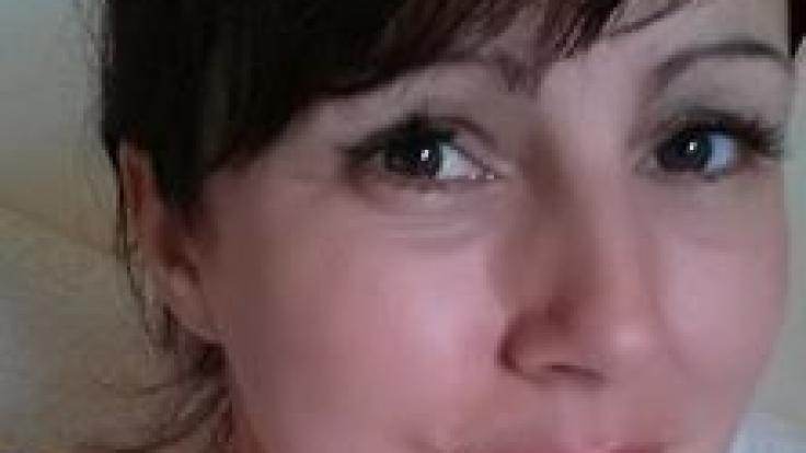 Melanie Williams zeigt auf diesem Facebook-Foto den dunklen Fleck unter ihrem Daumennagel: Kein Nagelpilz, sondern Krebs. (Foto)