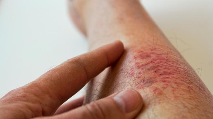 Diese Hautkrankheiten sind echt ekelhaft. (Foto)