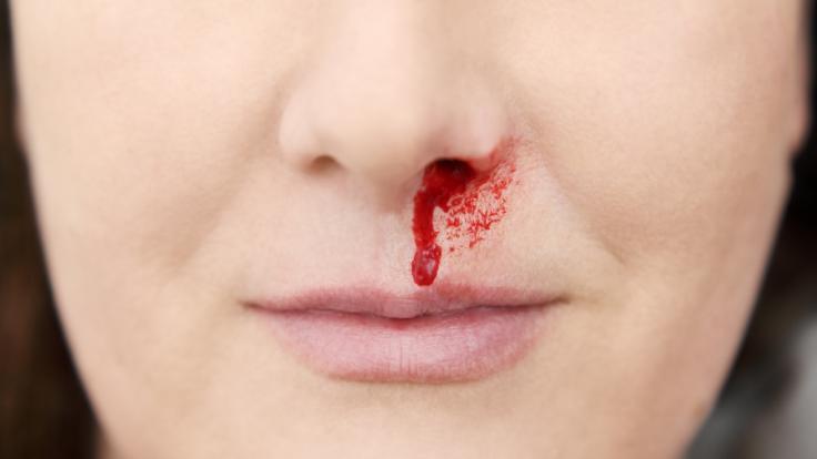 Eine Frau hatte Nasenbluten. Wenig später verlor sie ihr Gedächtnis. (Symbolfoto) (Foto)