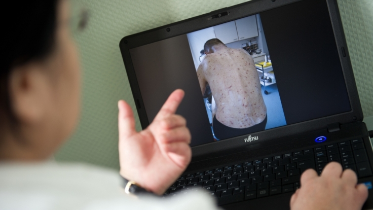 Die Obdachlosen-Ärztin Jenny De la Torre zeigt ein Foto auf ihrem Laptop von einem Patienten, der von Krätze befallen ist.