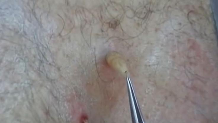 Wurm Unter Der Haut