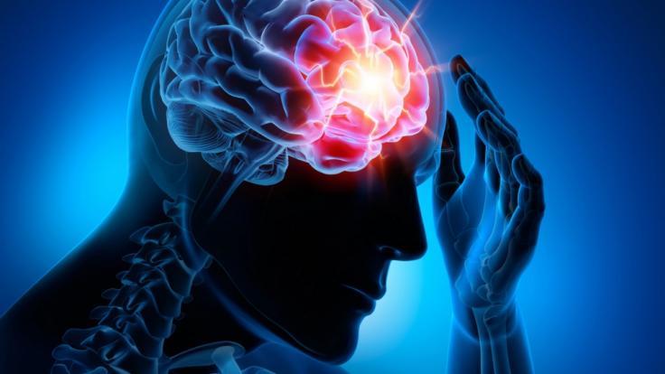 Ein indisches Mädchen litt unter heftigen Kopfschmerzen. Der Grund: Hunderte Bandwurmeier in ihrem Gehirn! (Symbolbild)