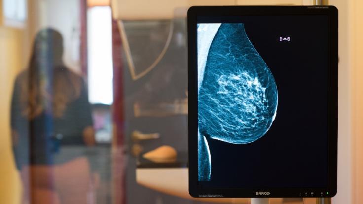 Ersetzt der Bluttest bald dieMammographie? (Foto)