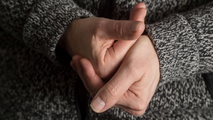 Eine Frau in Indien leidet anPolydaktylie. (Foto)