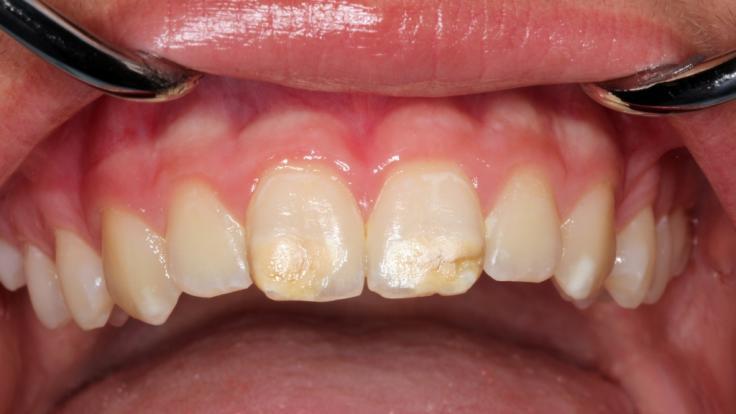 Zahnärzte warnen vor Kreidezähnen. (Foto)