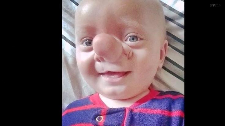 Der kleine Ollie leidet unter einem seltenen Hirnbruch. (Foto)