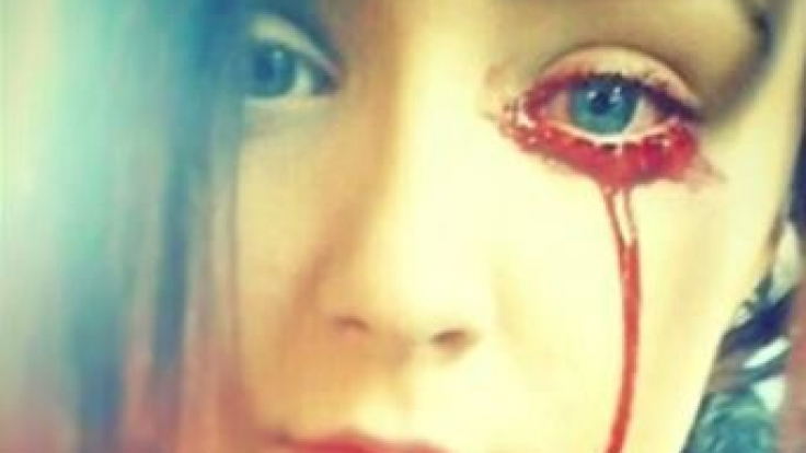 Seit drei Jahren kämpft Marnie Harvey gegen ihre Krankheit: Immer wieder fängt sie an aus Augen, Ohren und Nase zu bluten. (Foto)