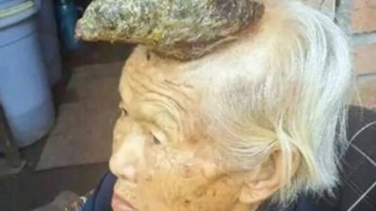 Chinesin (87) lebt mit Horn auf dem Kopf. (Foto)