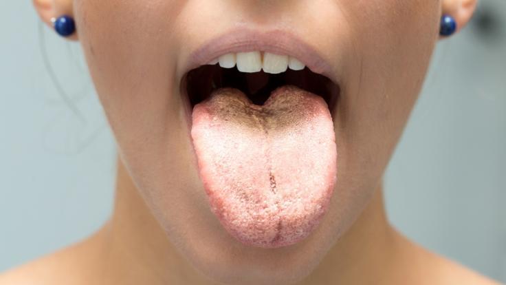 Das Aussehen der Zunge verrät eine Menge über unsere Gesundheit. (Foto)