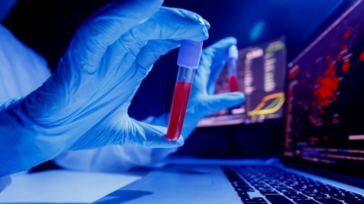 Wissenschaftler haben offenbar endlich den Ursprung des Coronavirus identifiziert. (Foto)
