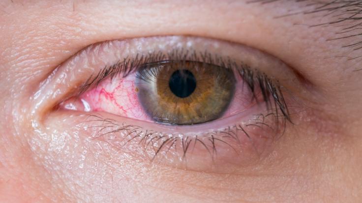 In Indien mussten Ärzte einen 15-Zentimeter-Parasiten aus dem Auge eines Mannes entfernen (Symbolbild).
